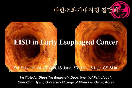 EISD in Early Esophageal Cancer