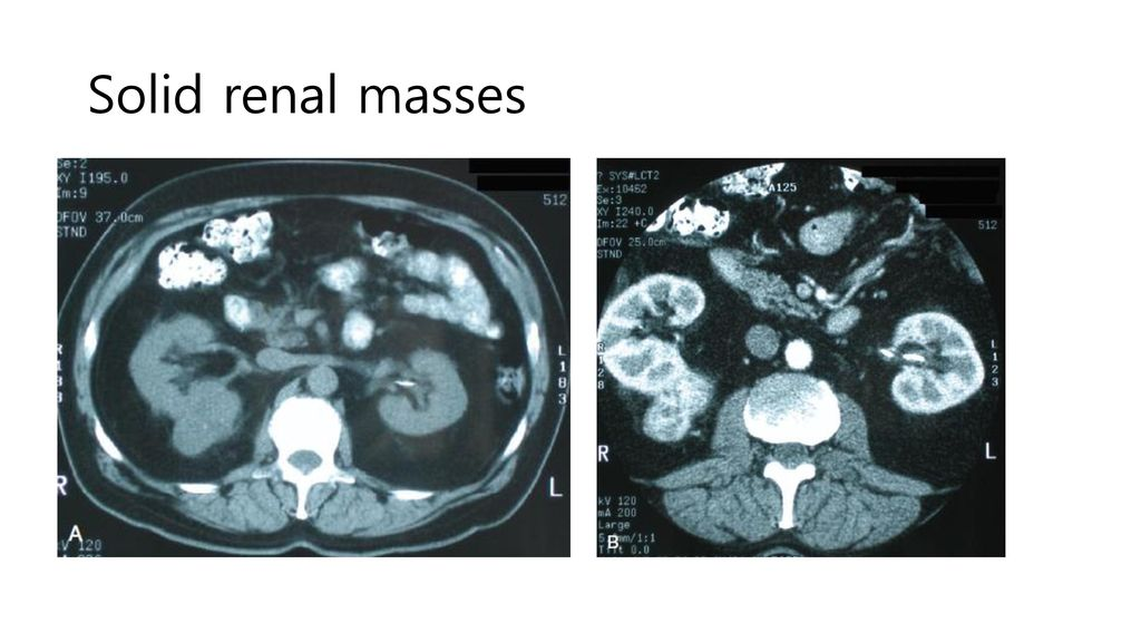 Solid renal masses