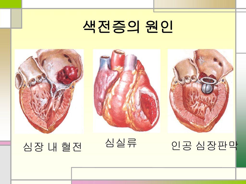색전증의 원인 심실류 심장 내 혈전 인공 심장판막