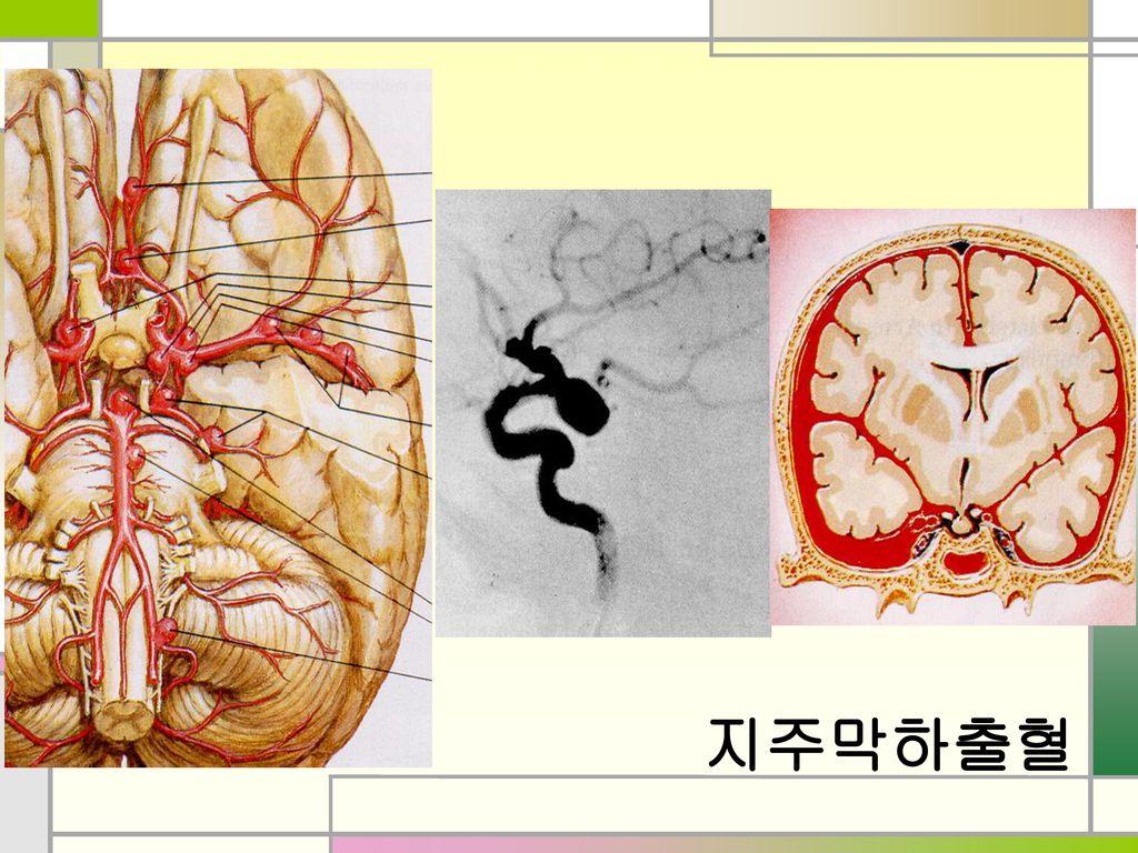 지주막하출혈