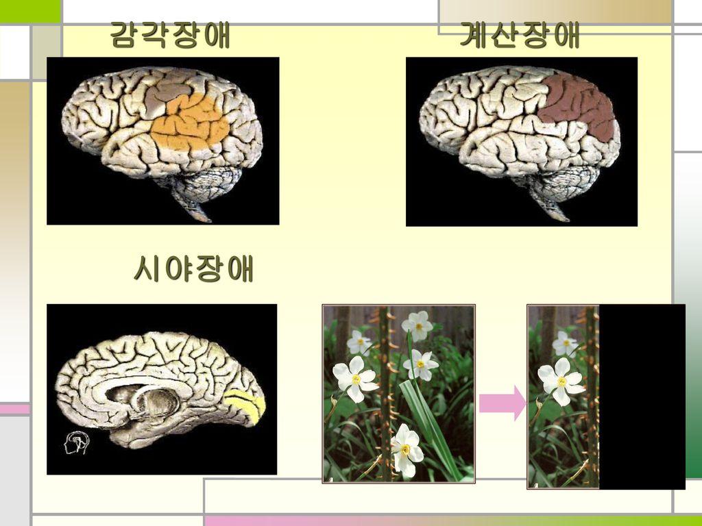 감각장애 계산장애 시야장애