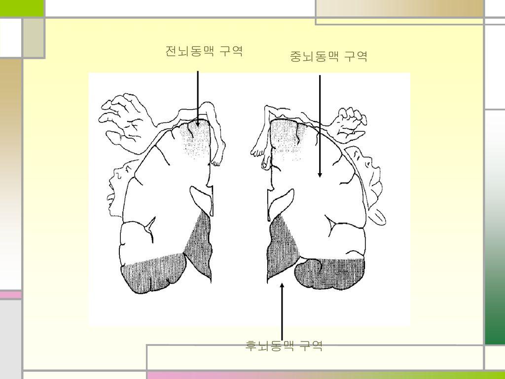 전뇌동맥 구역 중뇌동맥 구역 후뇌동맥 구역