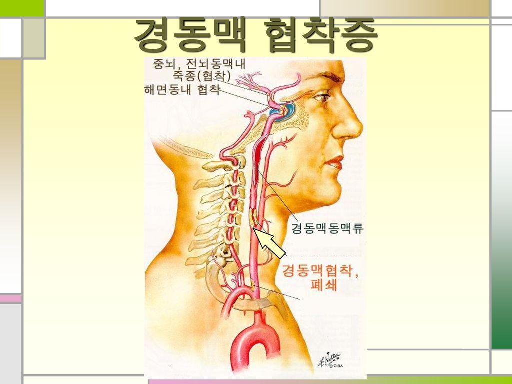 경동맥 협착증