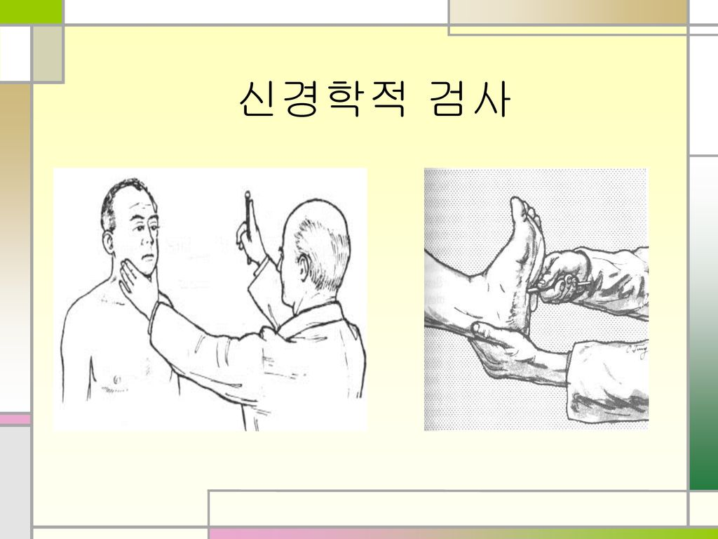 신경학적 검사