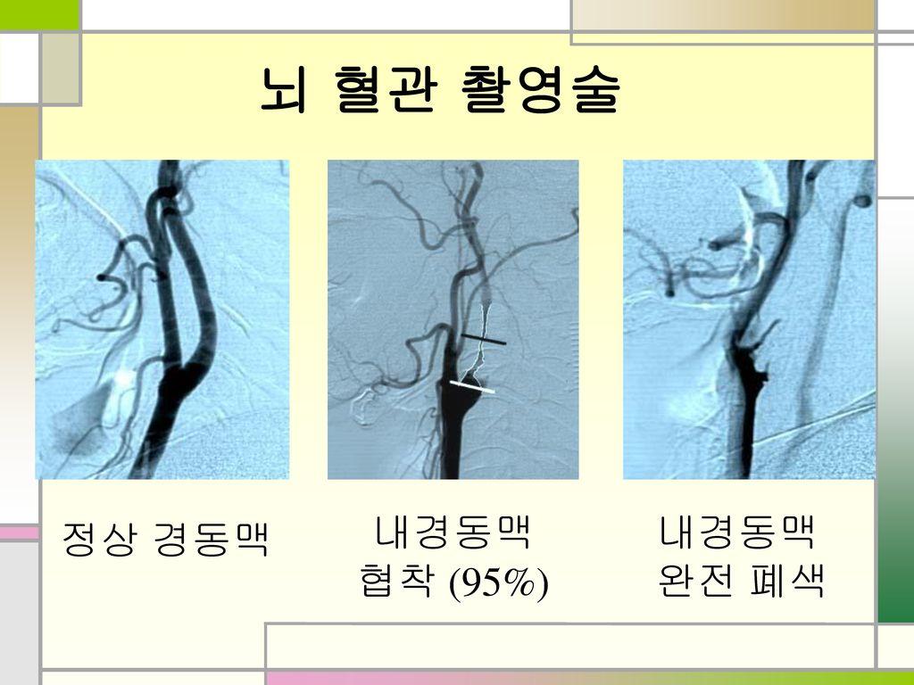 뇌 혈관 촬영술 내경동맥 협착 (95%) 내경동맥 완전 폐색 정상 경동맥