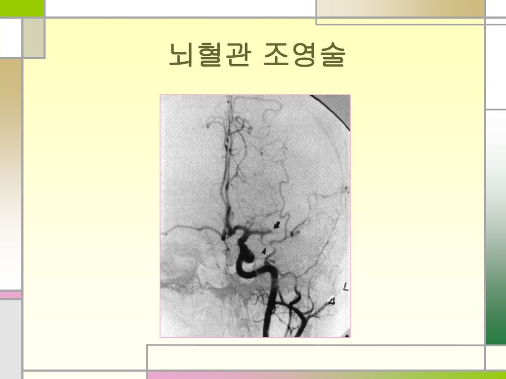 뇌혈관 조영술