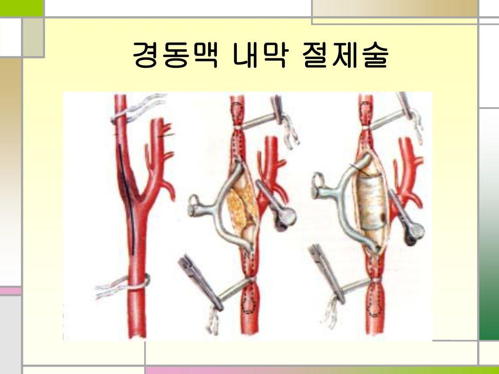 경동맥 내막 절제술