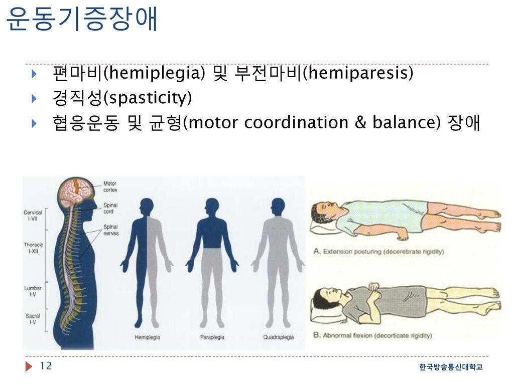 운동기증장애 편마비(hemiplegia) 및 부전마비(hemiparesis) 경직성(spasticity)