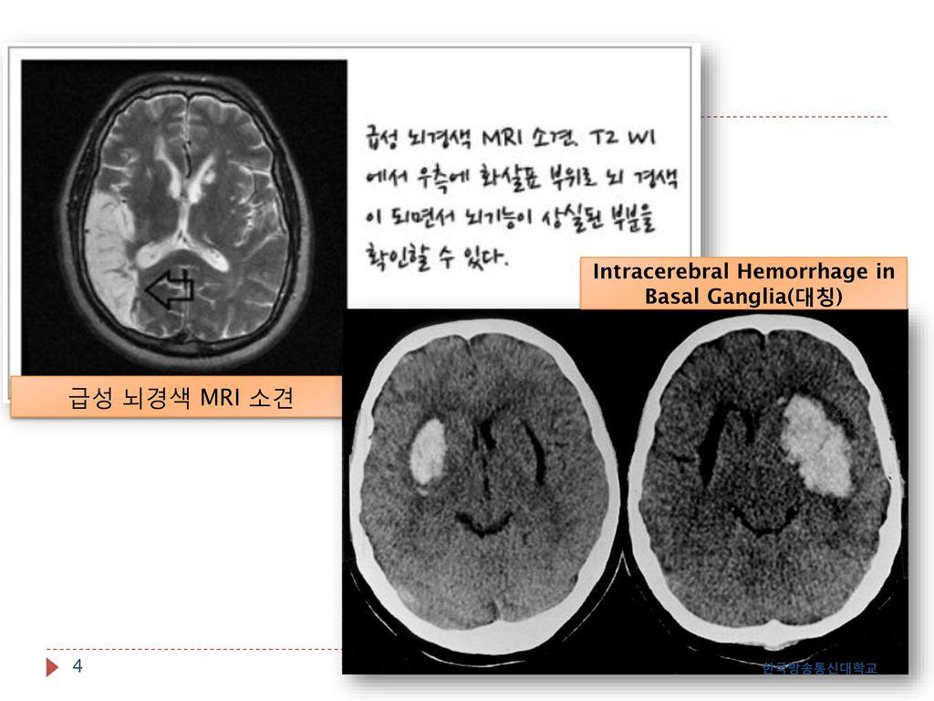 Intracerebral Hemorrhage in Basal Ganglia(대칭)
