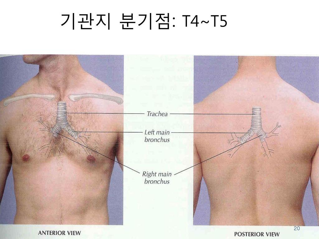 기관지 분기점: T4~T5