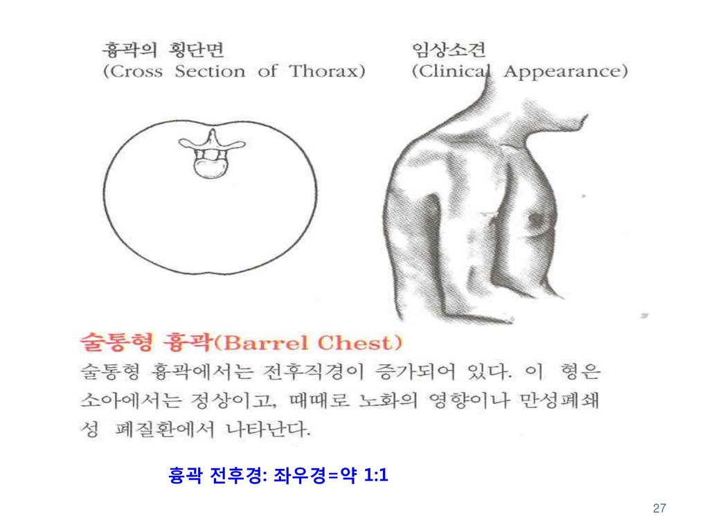흉곽 전후경: 좌우경=약 1:1