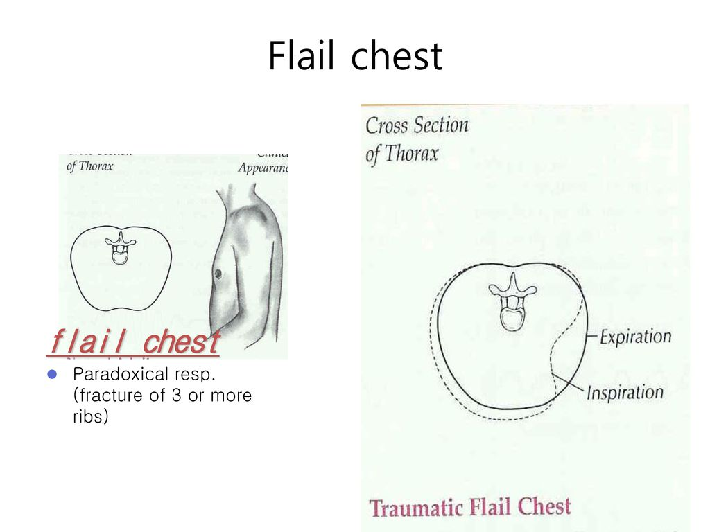 Flail chest flail chest Paradoxical resp. (fracture of 3 or more ribs)