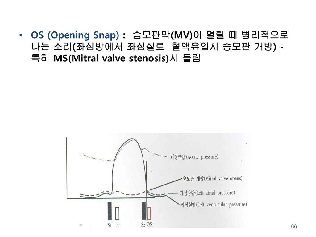 OS (Opening Snap) : 승모판막(MV)이 열릴 때 병리적으로 나는 소리(좌심방에서 좌심실로 혈액유입시 승모판 개방) - 특히 MS(Mitral valve stenosis)시 들림