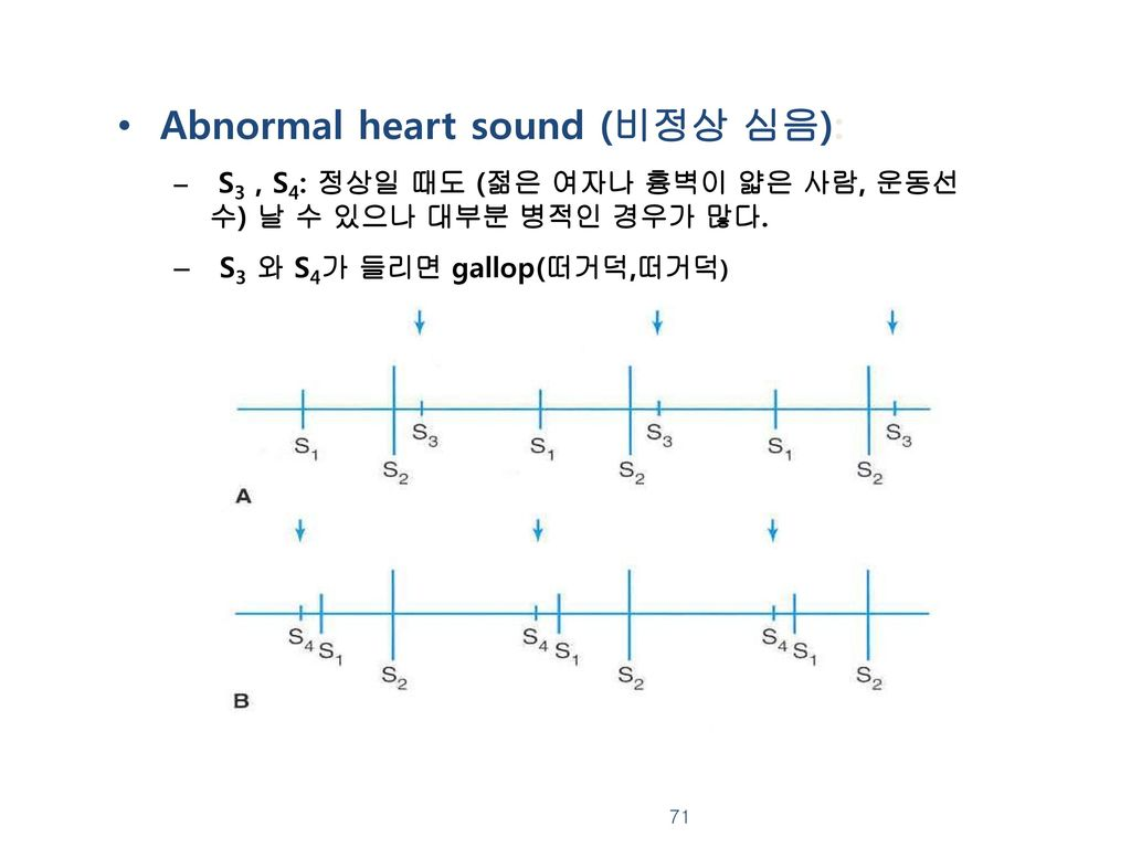 Abnormal heart sound (비정상 심음):
