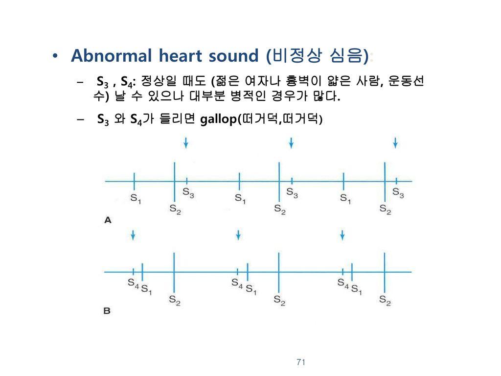Abnormal heart sound (비정상 심음):