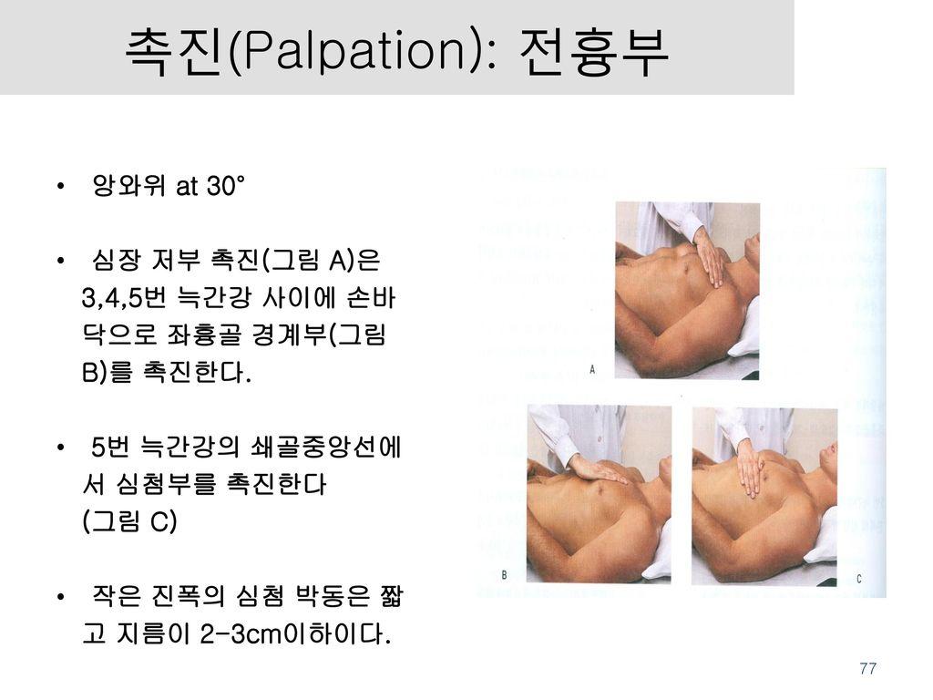 촉진(Palpation): 전흉부 앙와위 at 30° 심장 저부 촉진(그림 A)은 3,4,5번 늑간강 사이에 손바