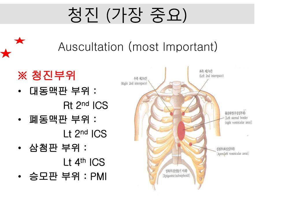 Auscultation (most Important)