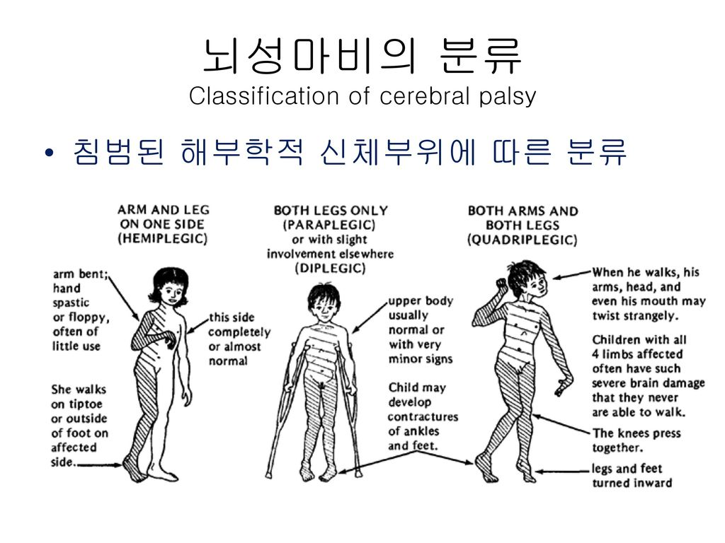 뇌성마비의 분류 Classification of cerebral palsy