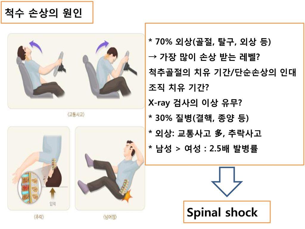 Spinal shock 척수 손상의 원인 * 70% 외상(골절, 탈구, 외상 등) → 가장 많이 손상 받는 레벨