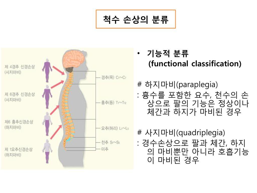 척수 손상의 분류 기능적 분류 (functional classification) # 하지마비(paraplegia)