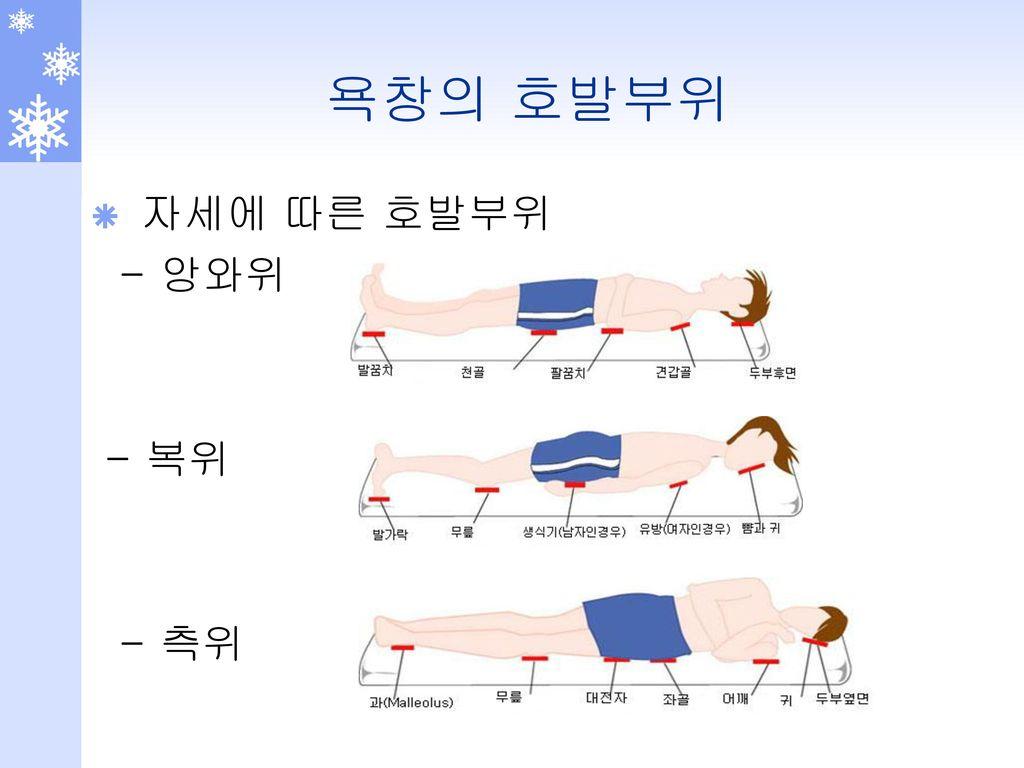 욕창의 호발부위 자세에 따른 호발부위 - 앙와위 - 복위 - 측위