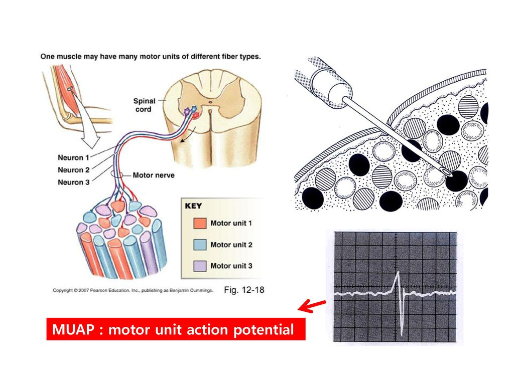 MUAP : motor unit action potential