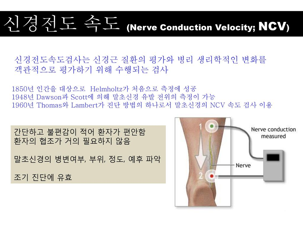 신경전도 속도 (Nerve Conduction Velocity; NCV)