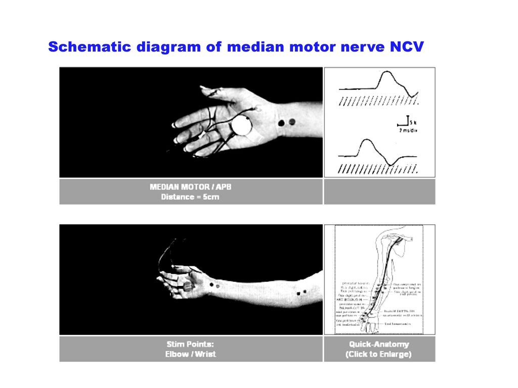Schematic diagram of median motor nerve NCV