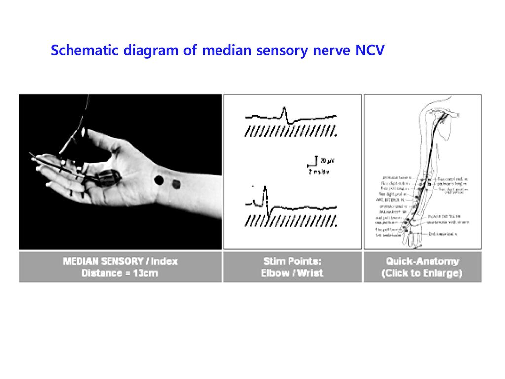 Schematic diagram of median sensory nerve NCV
