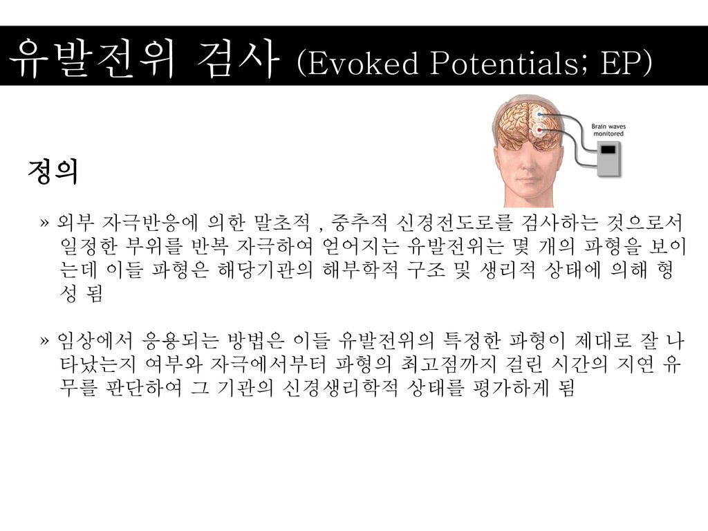 유발전위 검사 (Evoked Potentials; EP)