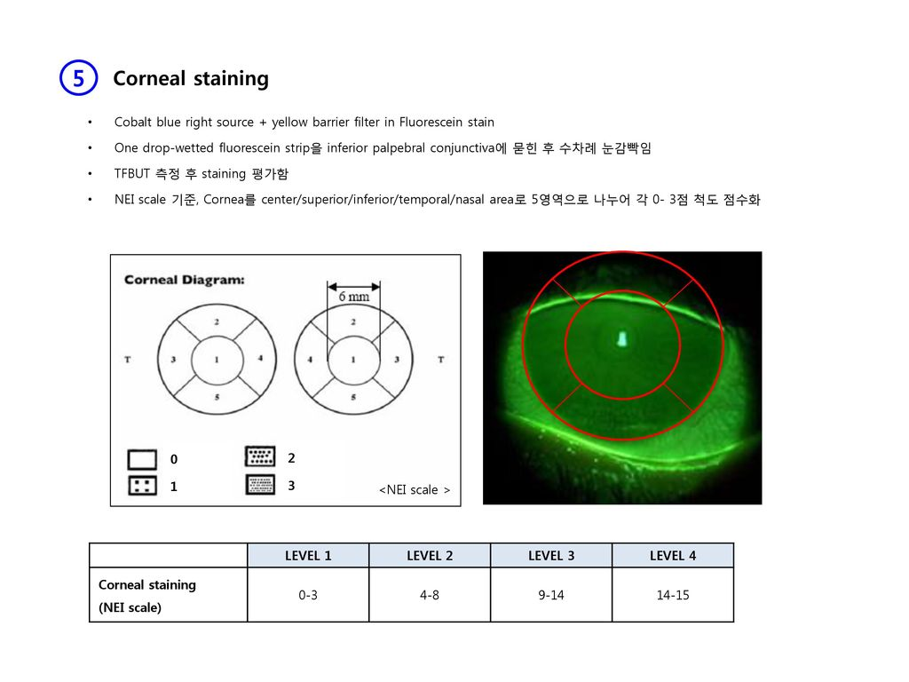 dry eye clinic seoul st  mary u2019s hospital eye center